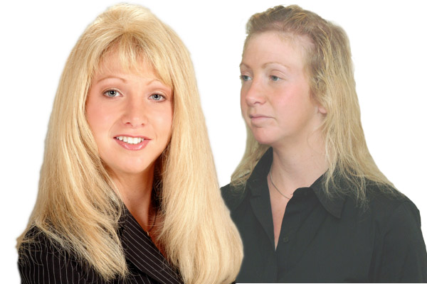 Top of the Head Enhancement for Hair replacement in Dunmore