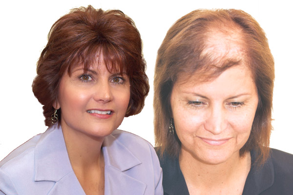 Hair Replacement before and after in Throop